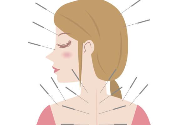 針治療を受ける女性のイラスト