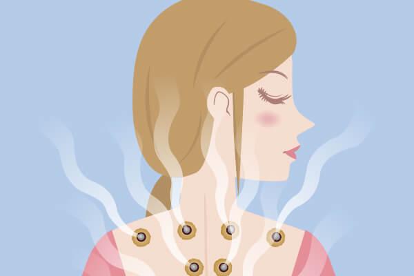 せんねん灸を受ける女性のイラスト